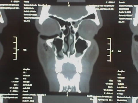 Cat Scan Results 3